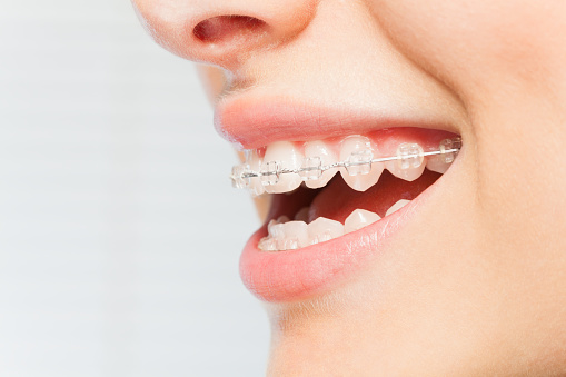 Benefits of Orthodontic Braces You Probably Weren't Aware of