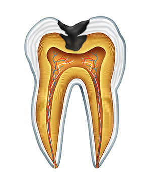 Diagram of a tooth with a cavity used by Ann Arbor dentist at Everwell Dentistry.