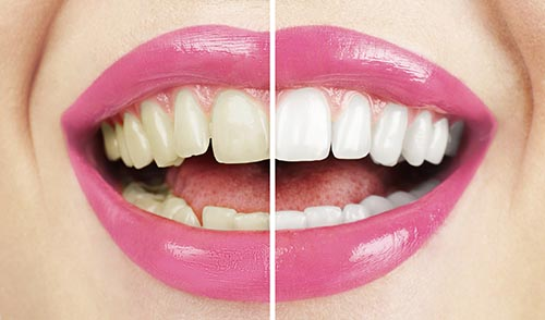 Teeth Whitening before and after from Everwell Dentistry in Ann Arbor Michigan.