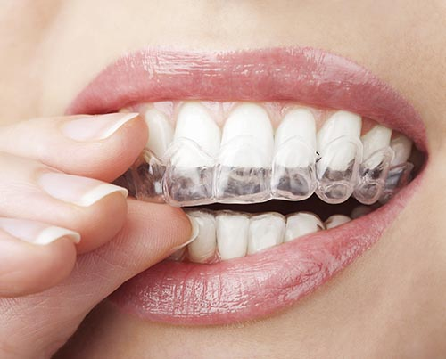 Teeth Whitening trays can be used at home.